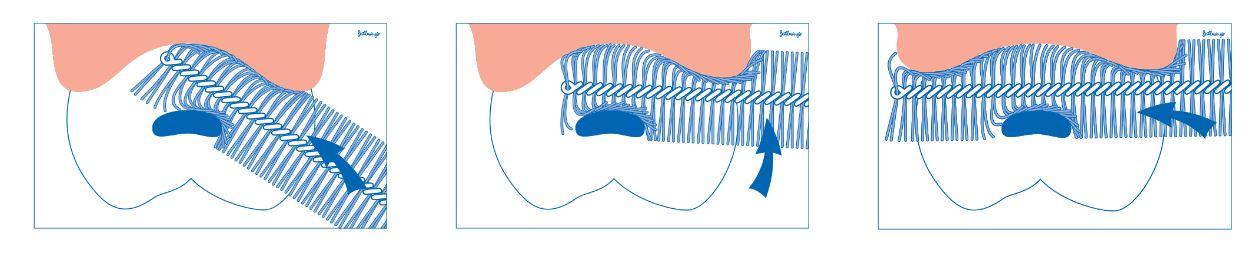 Uporaba Curaprox medzobne ščetke